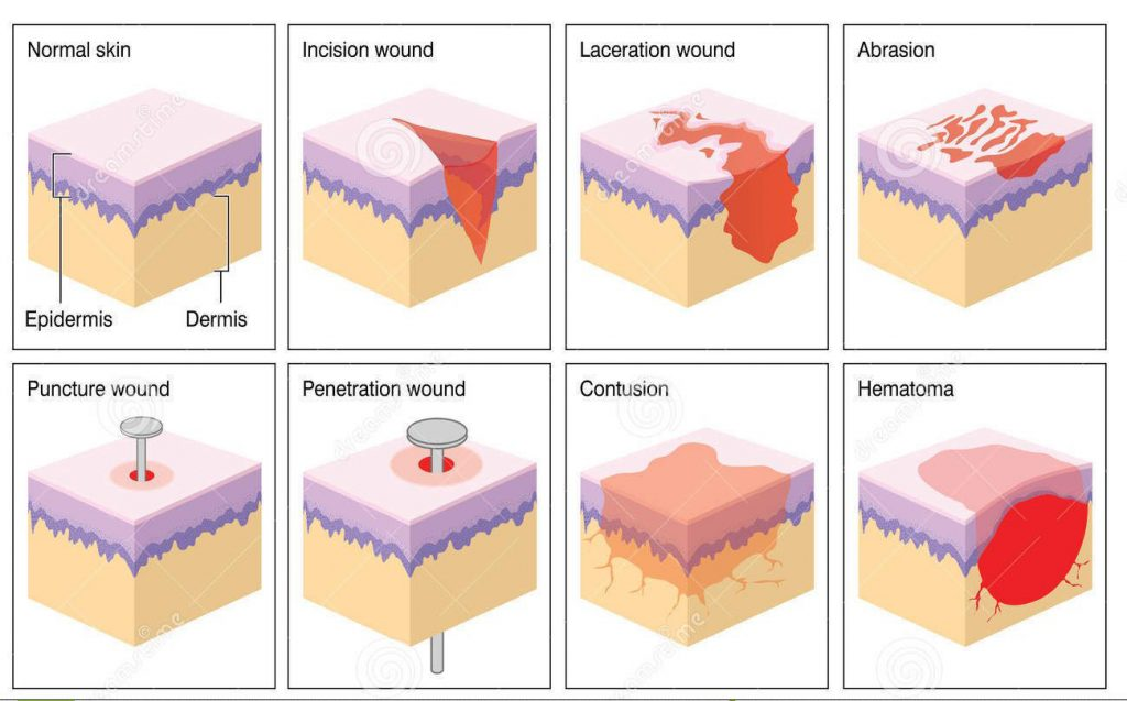 Diagram showing normal skin vs incision wound, laceration wound, abrasion, puncture wound, penetration wound, contusion and hematoma