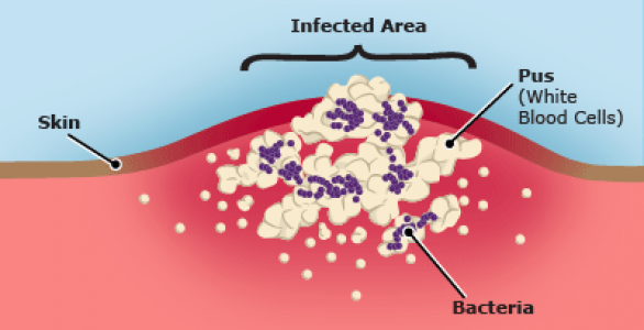 Infected Wounds