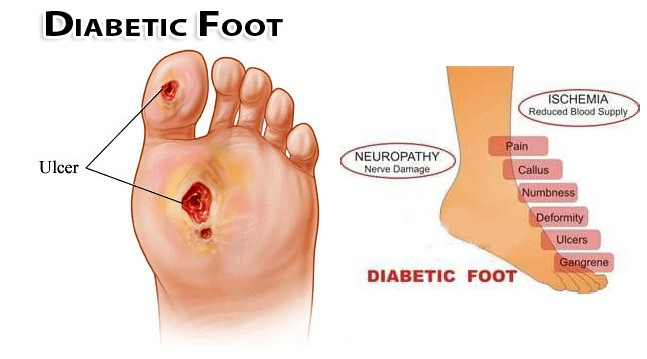 Diagram of diabetic foot and ulcer