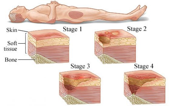Diagram of pressure ulcers stages.