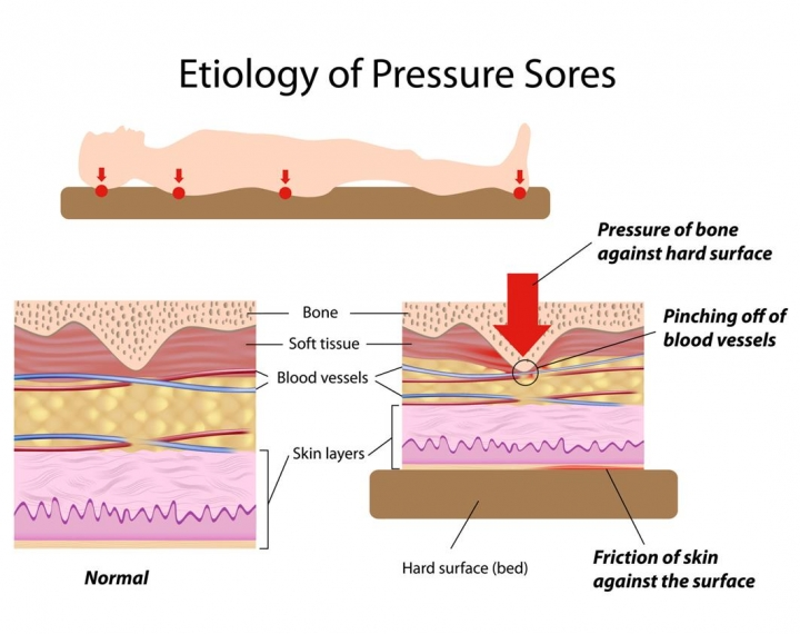 diagram of pressure ulcer and sores.
